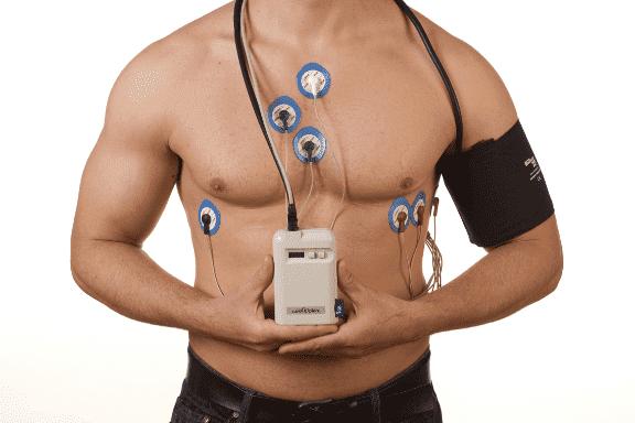 На фото: Холтер – прибор для анализа сердечной деятельности